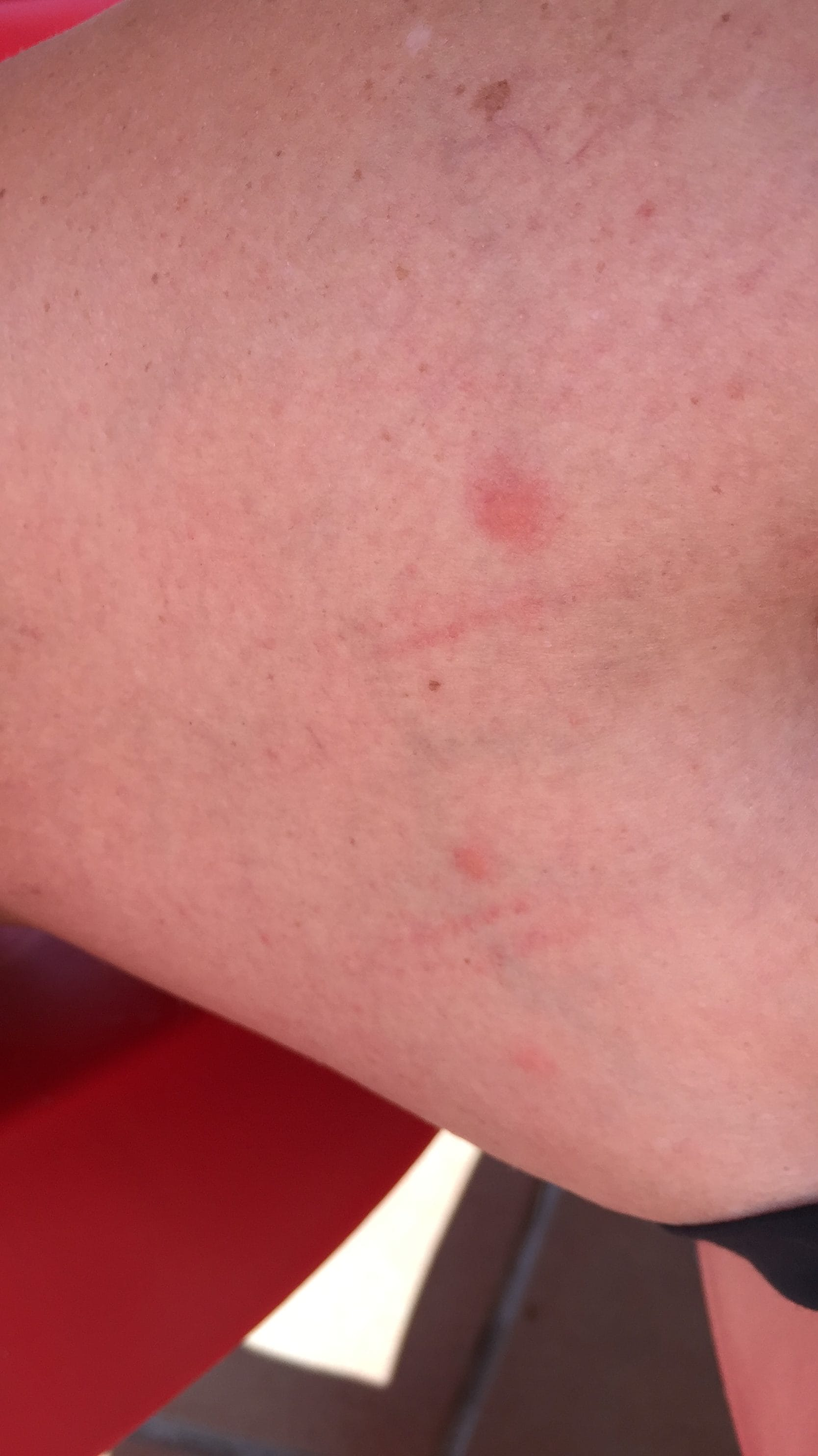 First signs of bedbug bites on legs